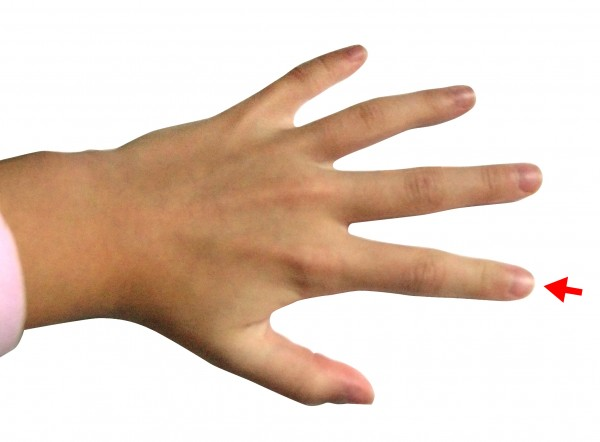 The ratio of index finger length to ring finger length provides an index of sexual differentiation. Credit: Wikimedia Commons